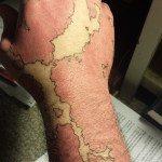 birthmark-tattoo-cover-ups-2