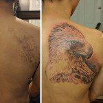 birthmark-tattoo-cover-ups-9
